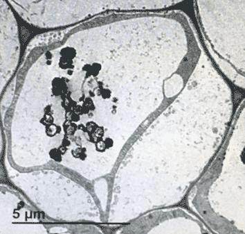 Con Nanoparticula
