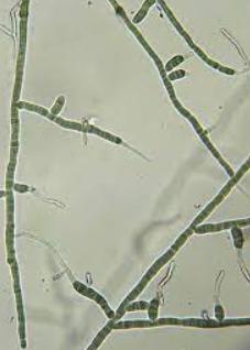 Ramificaciones del micelio.