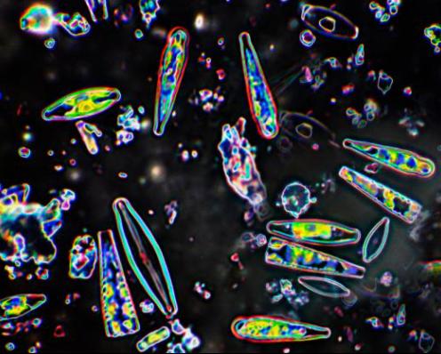 Imagen cercanas de diatomeas